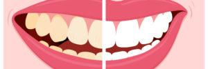foods that stain teeth