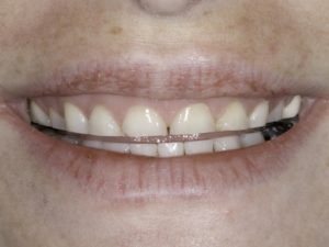 tooth wear as result of bruxism