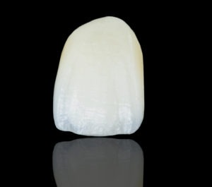 Veneering porcelains vary in optics