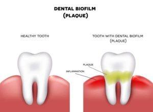 digital illustration of dental plaque