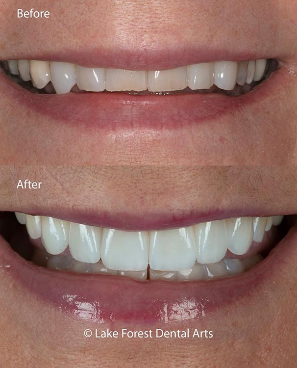 Confirm dental treatment opinion