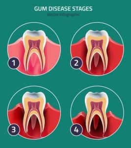 stages of gum disease vector