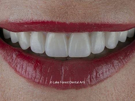 Ultra thin veneers are durable