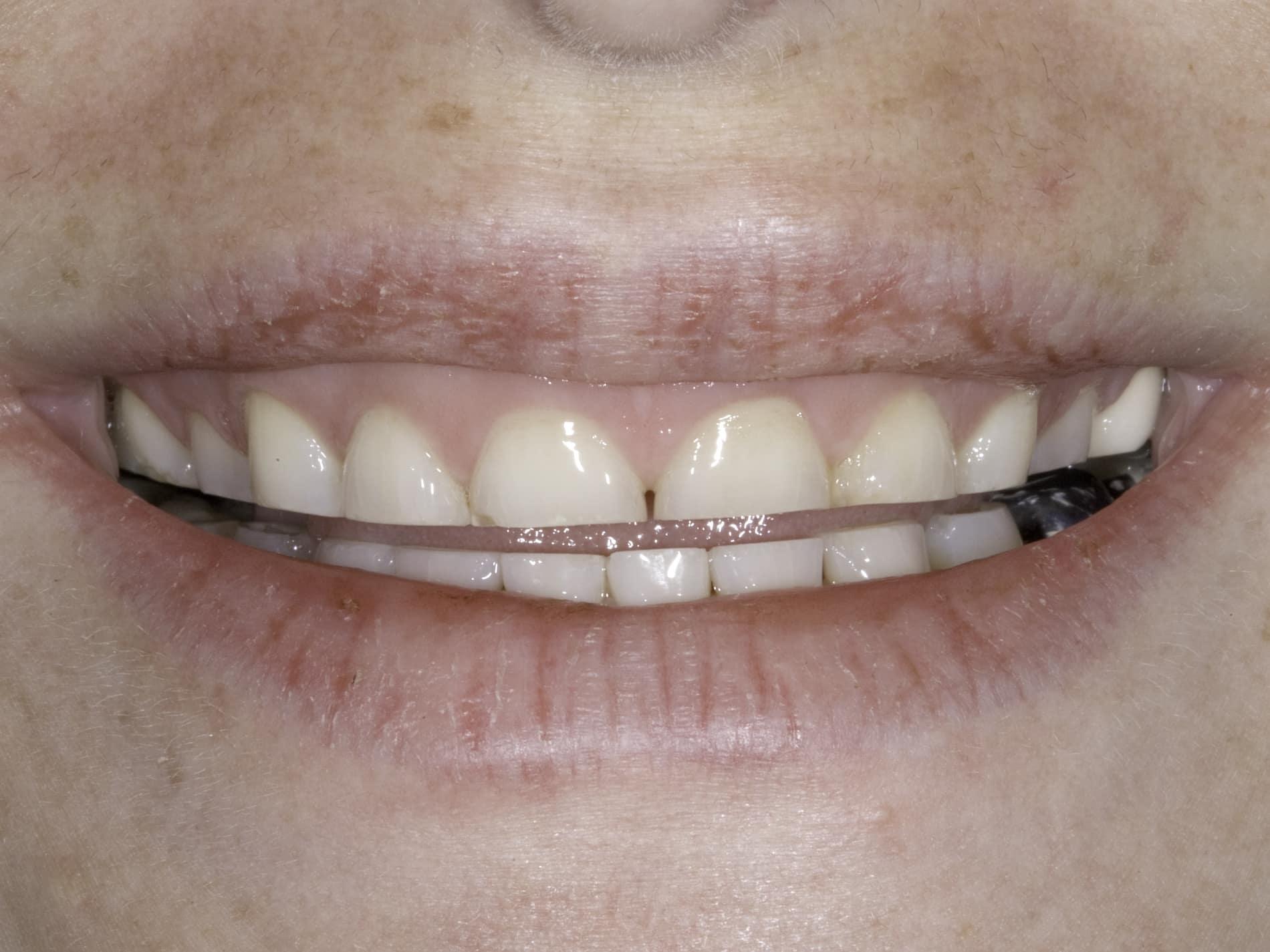Why Do I Grind My Teeth James Fondriest Dds Facd Ficd