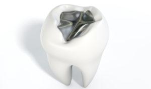Replace metal fillings