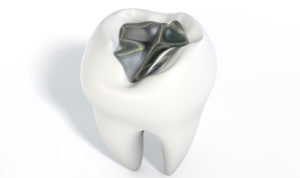 Replace metal fillings