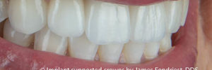 Implants Prevent Tooth Loss