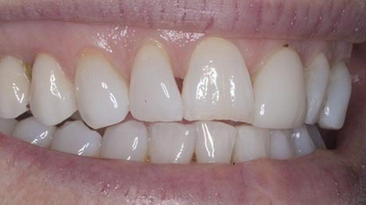 Black Triangles Between Teeth Missing Gum Between Teeth