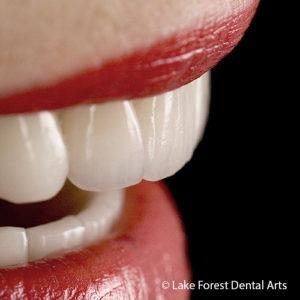 Close gaps between teeth