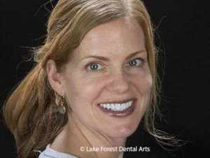 Cosmetic dentistry planning