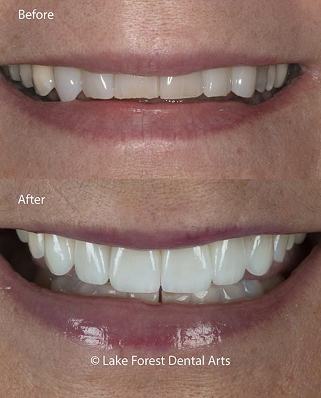 prepless veneers before and after