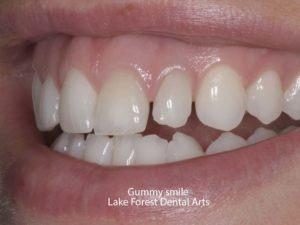 Correct a Gummy Smile