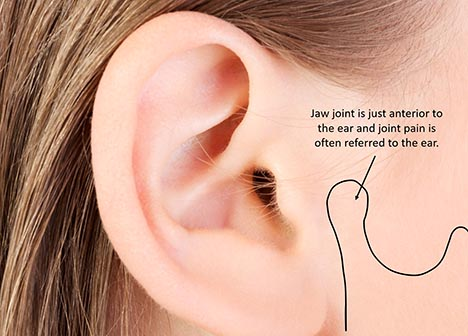 TMJs refer pain to ears