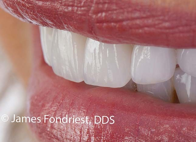 Implant benefits a smile
