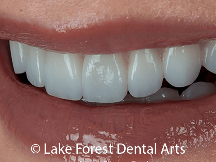 Cosmetic tooth coverings