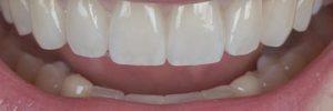 Teeth caps