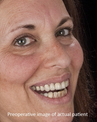 Before: This Highland Park patient wanted a brighter healthier smile. She hated the black lines on her crowns at the gumline and the varied unnatural look to the existing crownwork. Her floss would shred on her poorly fitting dentistry.