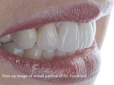 PFM dental bridgework