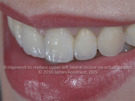 This patient was missing her left lateral incisor or the second complete tooth visible from the right.  There was not enough room for an implant so permanent PFM bridgework was created. Special attention was given to make a specific shape to the underside of the false tooth (ovate pontic) so that it would appear like a natural tooth growing out of the gum.  Matching the surface textures of the other natural teeth was also a challenge.