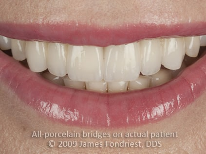 This patient was missing her upper lateral incisors with inadequate space for implants.  The upper front 6 teeth were all part of the fixed all-ceramic bridgework that was created to give her a pretty smile.