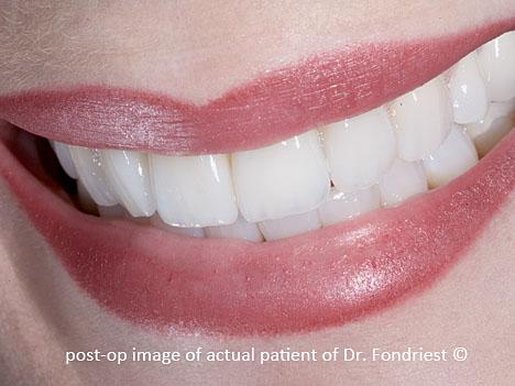 Procera all-porcelain bridgework on the upper front 4 teeth.