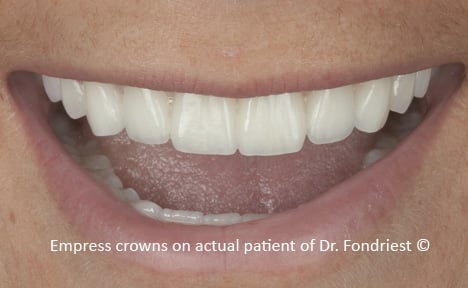 Empress crowns on front teeth of Celiac Patient