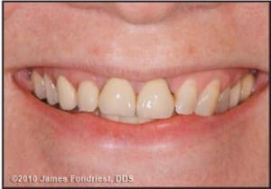 Figure 1. Preoperative appearance displays an uneven occlusal table, asymmetric gingival display, and varied color, texture, and opacities.