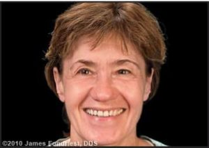 Figure 2. Patient appearance at initial presentation with facial and dental asymmetries.