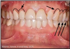Figure 3. The occlusal plane hung down on left side and the axial inclination of the central incisors was slanted.