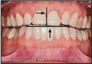 Figure 4. The occlusal plane had an exaggerated Curve of Spee, and the mandibular incisal edges were canted and uneven.