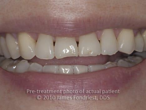 Black Triangles between teeth