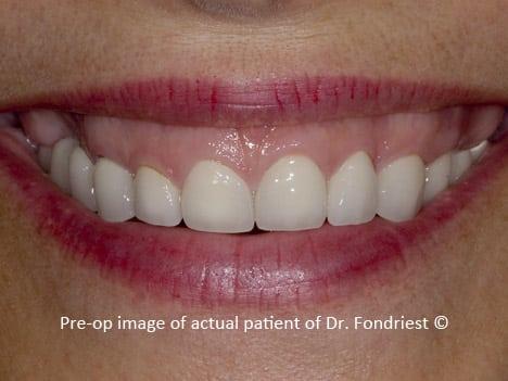 Image of a gummy smile