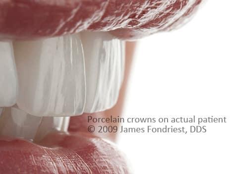 Closeup of a porcelain surface