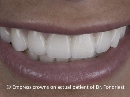 Empress Crowns