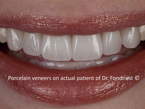 image of feldspathic porcelain veneers