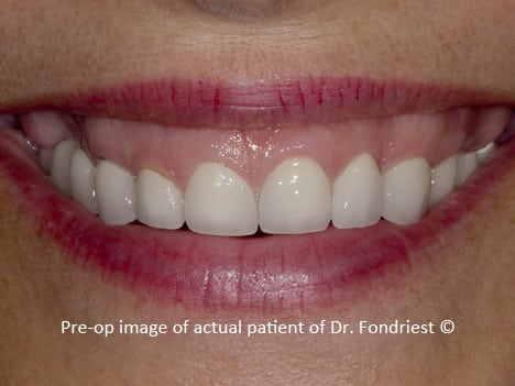 "Before treatment:  This patient recently had a poorly done smile makeover.  Her entire mouth had been restored with unattractive crowns.  The treatment was overly aggressive with very little planning.  Major occlusal, periodontal, and cosmetic issues were not addressed. The patient did not have an understanding of what was wrong and was not happy with the results.  She had communicated to her previous dentist that she did not like her ""gummy smile"" and the large boney defect above her upper right teeth. She was told that nothing could be done. The new dentistry did not help with either of her chief complaints.  The reason for this patient's gummy display was threefold: she had a short upper lip, super-eruption of her natural upper teeth due to bruxism, and she had some vertical maxillary excession as described above."