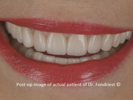 After treatment:  This patient really wanted a healthy nice smile and was highly motivated to achieve her goals.  The gummy smile was corrected by perio-plastic surgery and the bone defect on the upper right was improved by gum grafts and jaw ridge recontouring.  The prior treatment, that was only 3 years old, had already caused the loss of 4 teeth that were replaced with implants. The short and squatty crowns were replaced with new Empress crowns with the appropriate length to width ratios.