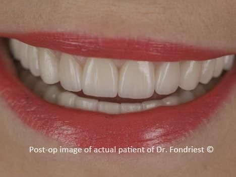 Patient after gum lift has a normal smile