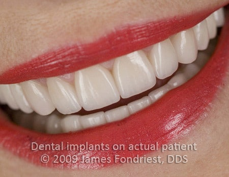Mixed natural and Implant crowns