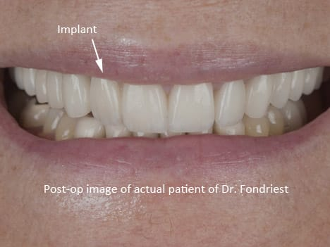 This patient lost a tooth due to gum disease.  The gum ridge was grafted and special gum scallop evening was performed by a periodontist.  The final attractive porcelain crown was supported by a custon milled zirconium UCLA abutment.