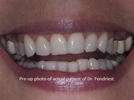 Crowns with black lines and occlusal plane cant / slant