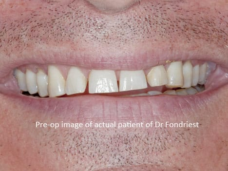 image of tooth grinder with bruxism