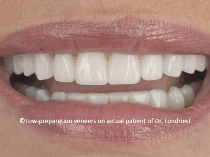 "Ten conservative porcelain veneers were placed on the upper teeth of this Gurnee patient.  ""Additive only veneers"" were used to change the shapes and to remove the color blemishes of her teeth."
