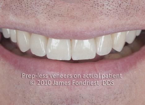 image of Prep-less veneers