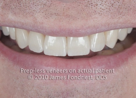 Seven veneers with only a small amount of enamel removal were done on the upper front teeth were done to lengthen them and to fill the gaps or spaces between his teeth and to broaden the smile.