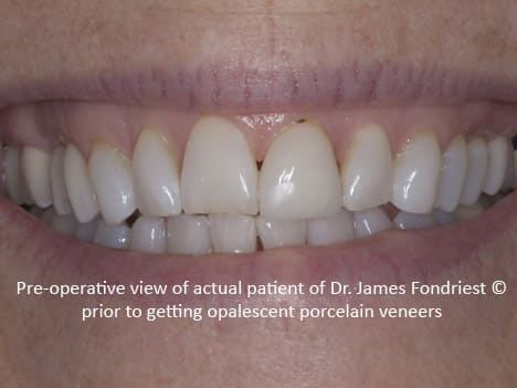 Opalescent Porcelain Veneers Lake Forest Il