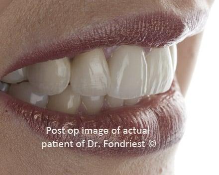 Esthetic PFM fixed dental bridges, dental bridge before and after