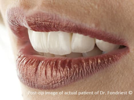 Porcelain on Gold crowns were designed to appear like natural teeth for this Chicago socialite. Restorations with metallic substructures were selected due to this patient's chronic clenching and bruxism habits.