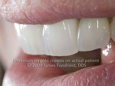 Porcelain fused to metal crowns