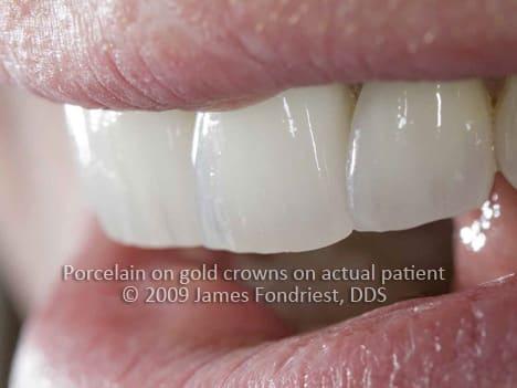 Porcelain fused to metal crowns
